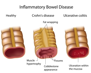 inflammatory bowel disease- crohn's and ulcerative colitis